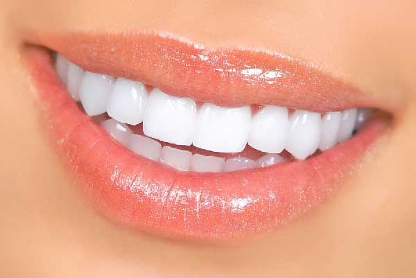 bigstock-Woman-Teeth-600x401