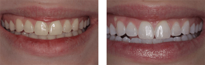 GLO Patient - Before & After