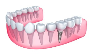 Dental-implant-in-the-gum--Is-39560938