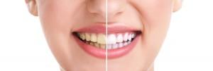 woman-teeth-and-smile-close-u-38719831