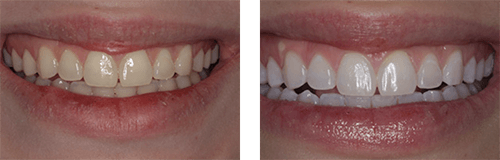 Glo Science Pro Teeth Whitening Red Barn Dental Family